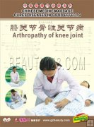 Arthropathy Of Knee Joint, Chinese Massage DVD