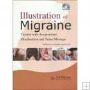 Illustration of Migraine Treated with Acupuncture, Moxibustion