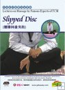 Lectures on Massage by Famous Experts of TCM-Slipped Disc