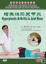 CHINESE MEDICINE MASSAGE CURES DISEASES-Hyperplastic Arthritis in Joint Knee
